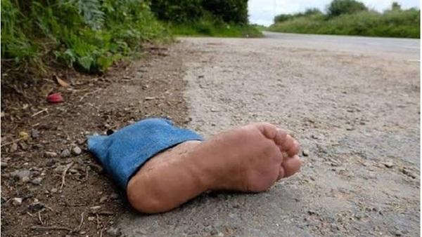 تم نفي الخبر من قسم الشروق العثور على قدم آدمية يثير الذعر في الشروق